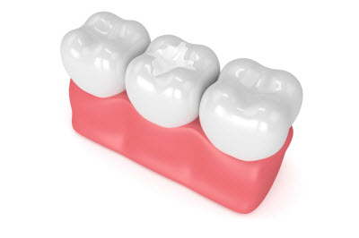 3D render of composite white filling