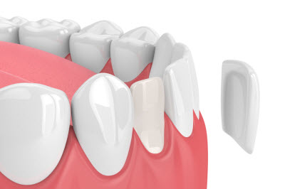 3D render of dental veneer