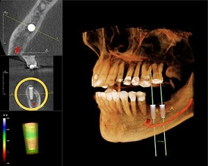 dr. rubina khorana uses ct scans for 3d imaging to provides the most accurate diagnoses for dental implant treatment.