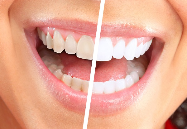 dr. rubina khorana offers different types of teeth whitening options at bella vista smiles. contact our office in the twelve bridges and licoln area to find out what option is best for you.