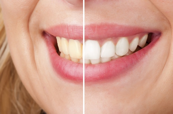 teeth whitening is available at bella vista smiles in the twelve bridges and lincoln area. contact dr. rubina khorana today for your teeth whitening appointment.