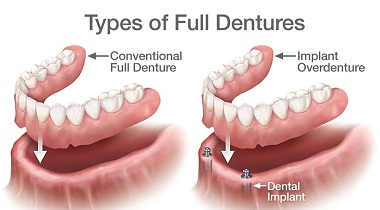 implant supported dentures are available at bella vista smiles. visit dr. rubina khorana in lincoln, ca today!