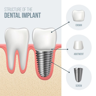 visit bella vista smiles in lincoln, ca for your dental implant consulation.
