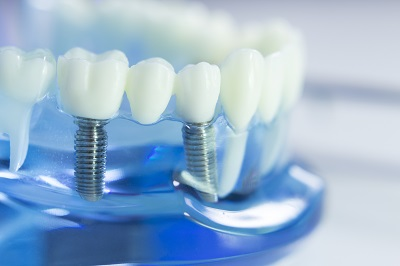 dental model showing tooth and dental implants