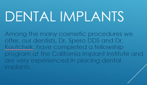 pasadena implant dentists