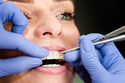 Orthodontist fixing invisible ceramic braces