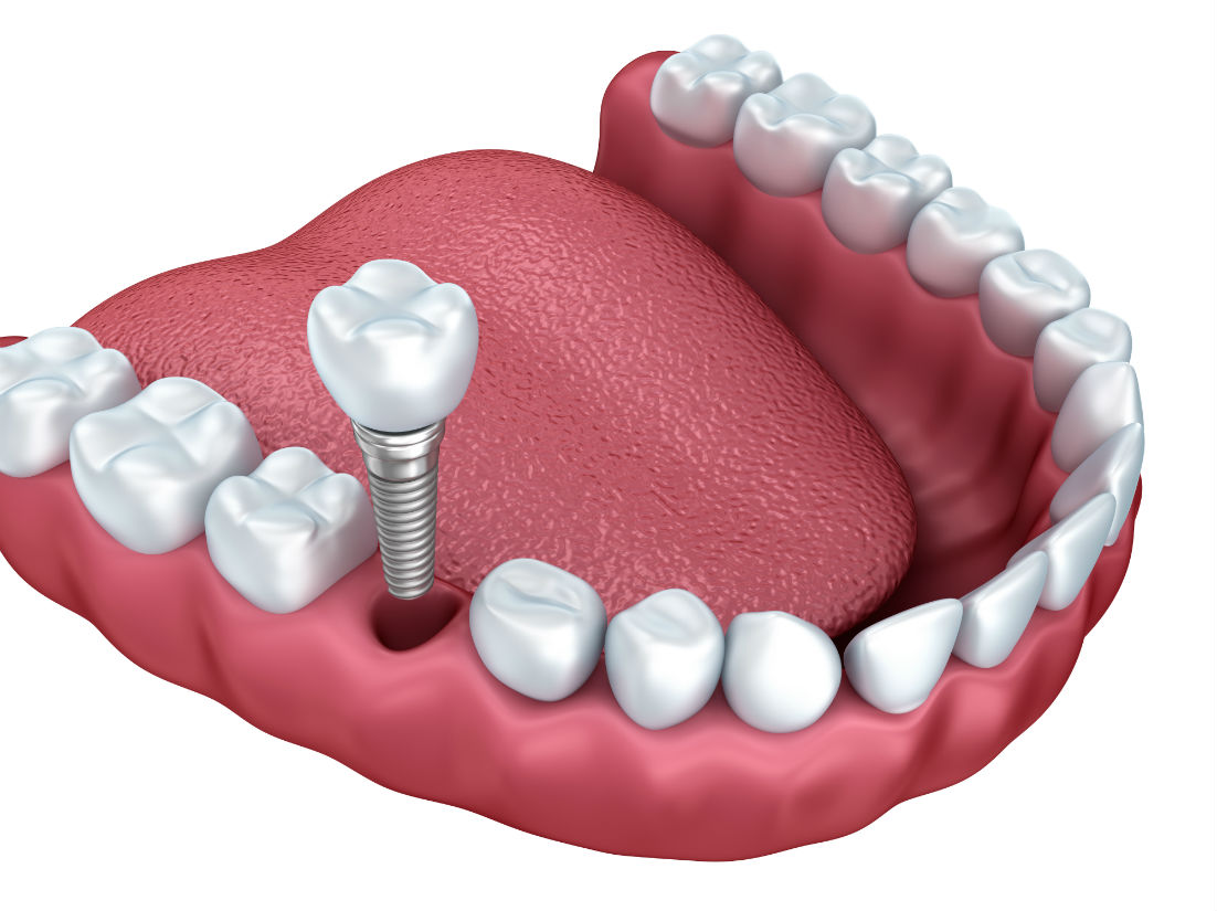 Dental Implants Santa Clara