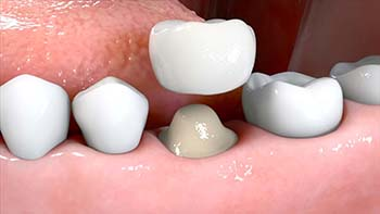 Placing a dental crown
