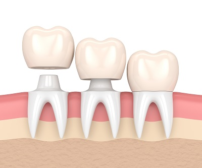 3D render of dental crowns