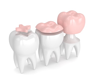 A look at the options for repairing damaged teeth