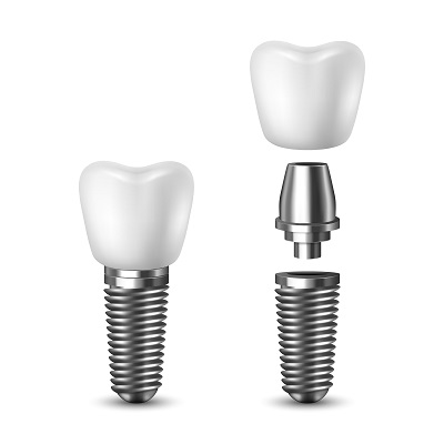 An overview of what dental implants look like before instillation