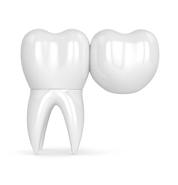 3d render of teeth with dental bridge