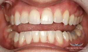 after 6 month smiles treatment newton ma