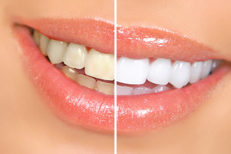 reverse stained teeth with teeth whitening