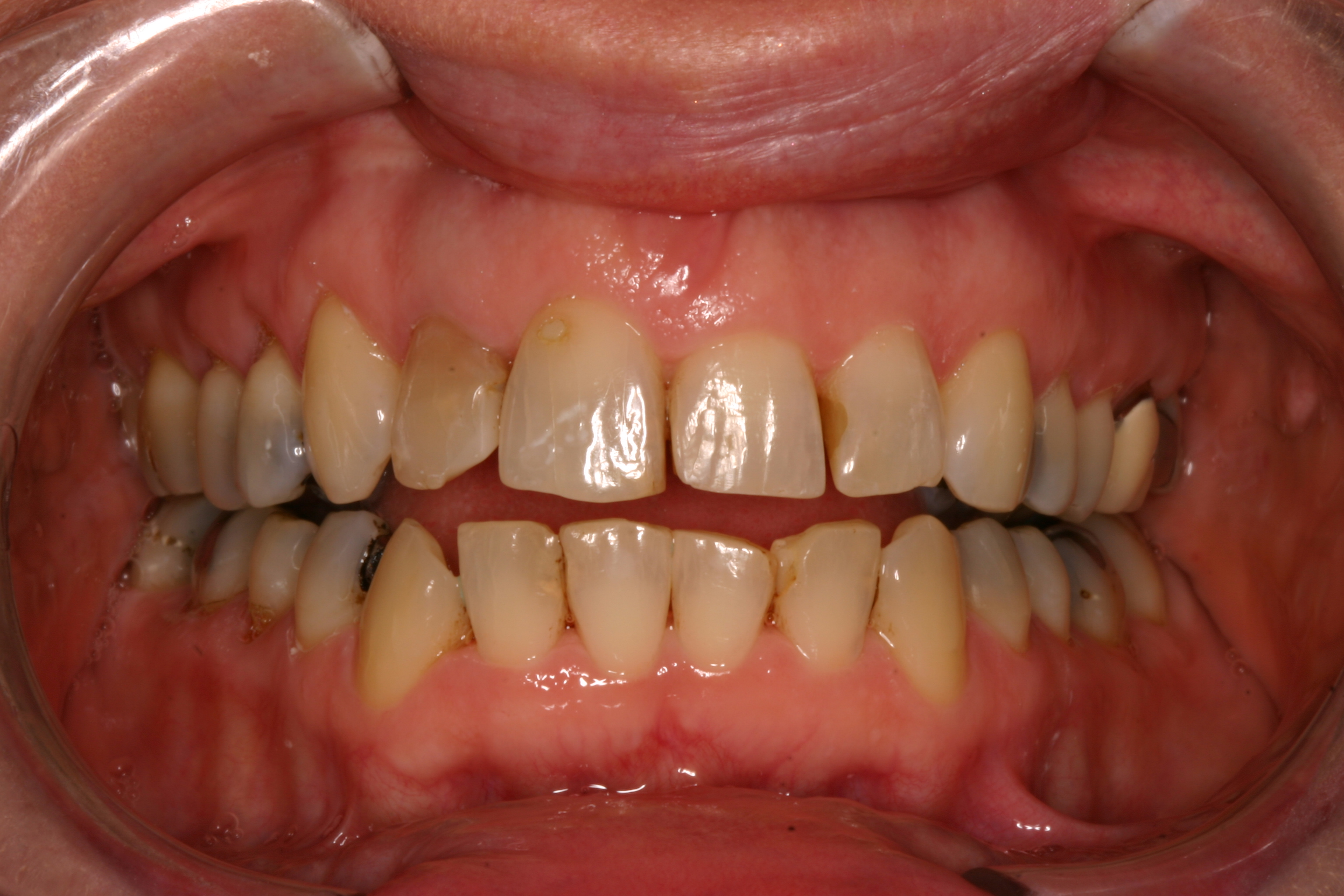 Dr. Bader restores smiles using crowns. Contact us at Aesthetic Smiles for your consultation.
