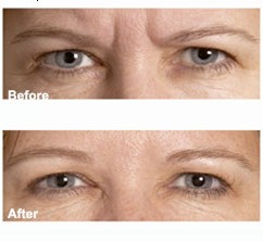 Before and after shot of botox patient