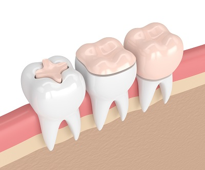 3d render of teeth with inlay, onlay and crown filling