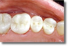 tooth-colored composite dental fillings newton