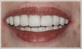 Visit Dr. Steve Bader to see if veneers are the best cosmetic dentistry option for you.