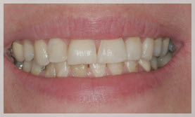 dental veneers in newton ma