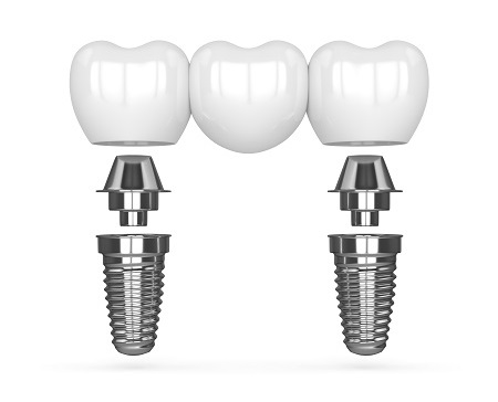 illustration of implant supported bridge