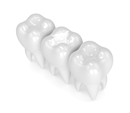 3d render of teeth with composite filling
