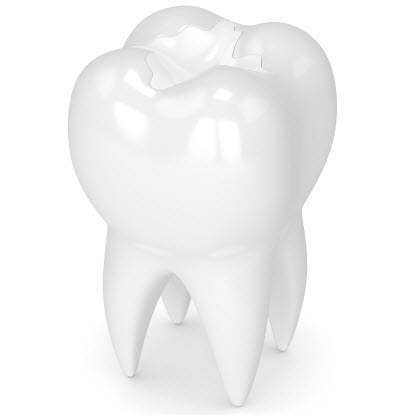 3d render of tooth with dental composite filling over white background