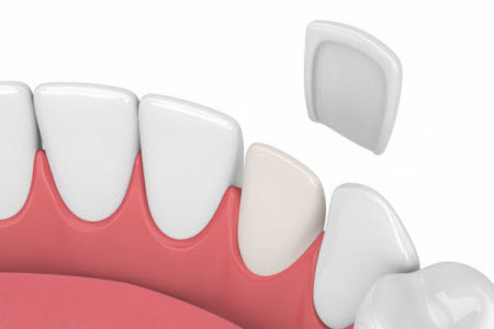 d render of teeth with veneer over white background