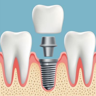 rendering of dental implant placement