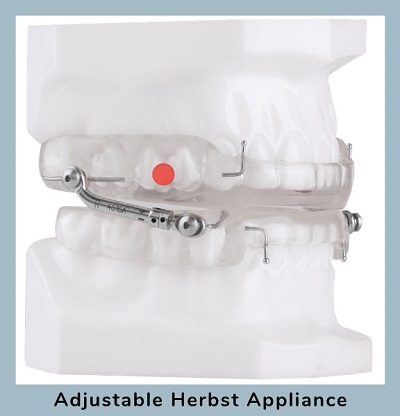 Adjustable Herbst Appliance