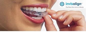 smile with invisalign tray montebello clear aligners dr shay