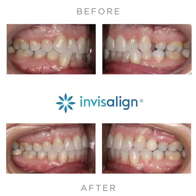 before and after invisalign photos clear aligners montebello dentist dr. shay