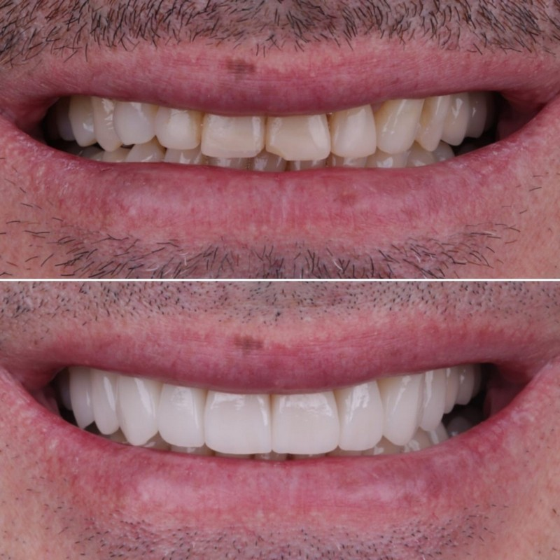 smile before and after veneers montebello ca dentistry for children and adults