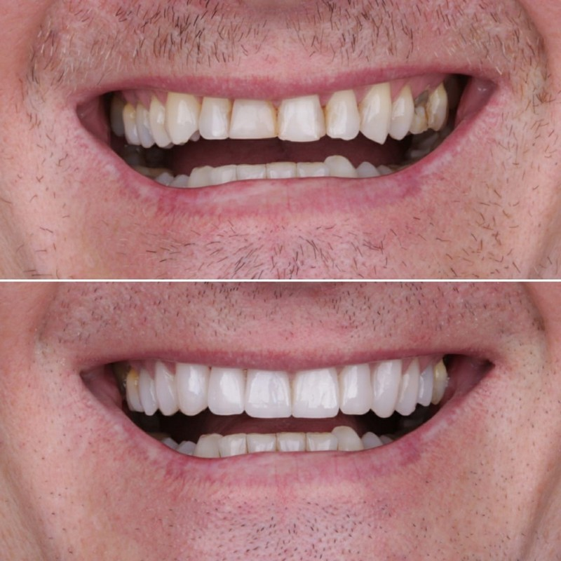 before and after veneers montebello ca dentist dr shay