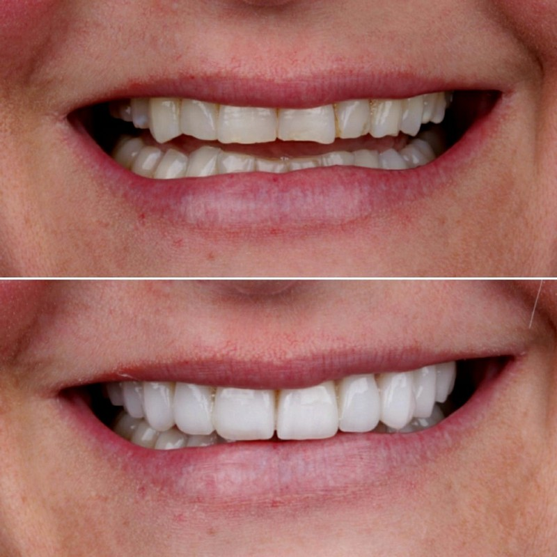 woman smiling after veneer placement montebello dentistry for children and adults