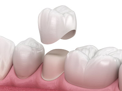 reasons why you might need a dental crown