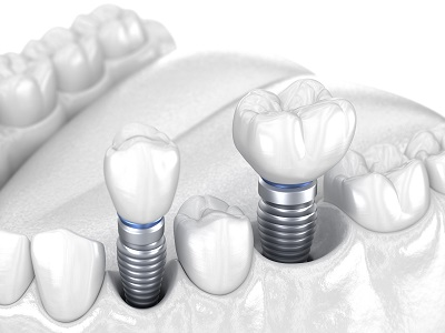 3D model of dental implants