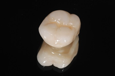 Close up of dental crown