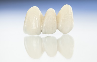 3D rendered dental bridges