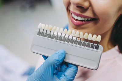 woman choosing a shade for tooth whitening
