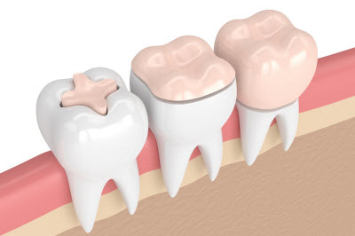 3d render of teeth with fillings and crowns