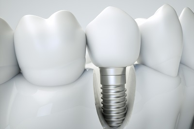 Dental implant - 3d rendering