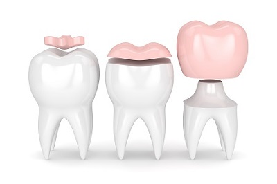 3d render of tooth with crown and filling restorations