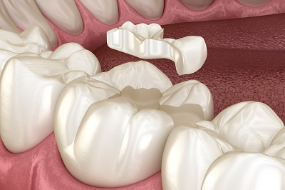 3d render of tooth with dental inlay