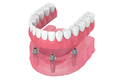 illustration of all on 4 implants