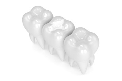3d render of tooth with white filling