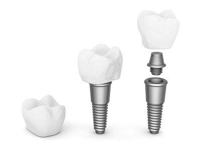 3d render of dental implant and crown