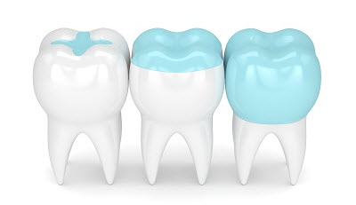 3d render of dental crown, inlay, and onlay