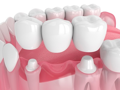 3d render of dental bridge