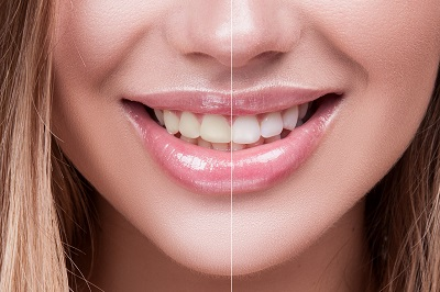Close-up Female Teeth Whitening Before and After the Procedure